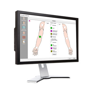 Upper Extremity Impairment Calculation Software